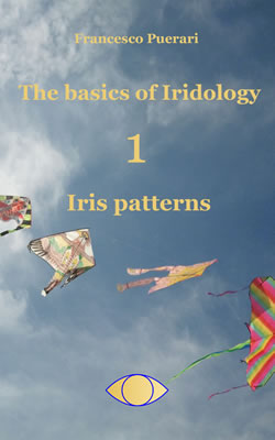 The-Basics-of-Iridology-Iris-patterns