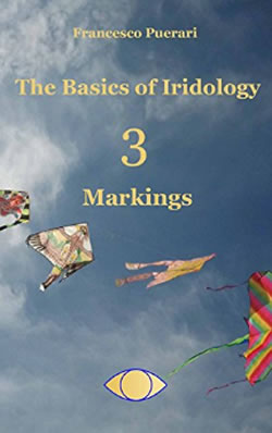 The-Basics-of-Iridology-Markings