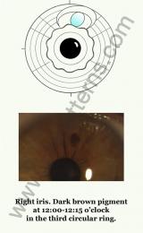 Hypophysis right iris