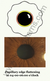 Pupillary edge