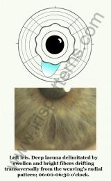 Uterus left iris