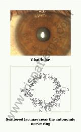 Glandular iris