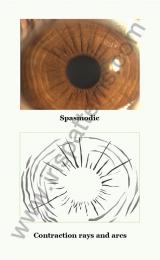 Spasmodic iris